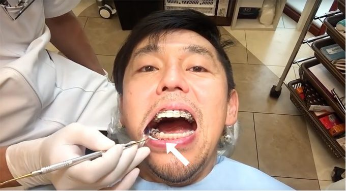 削った犬歯は修復可能?継ぎ足した後の犬歯