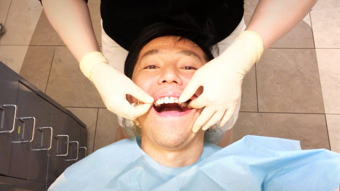 【大人の歯列矯正】2つのリスクと回避法|リスクは減らせます【体験談】