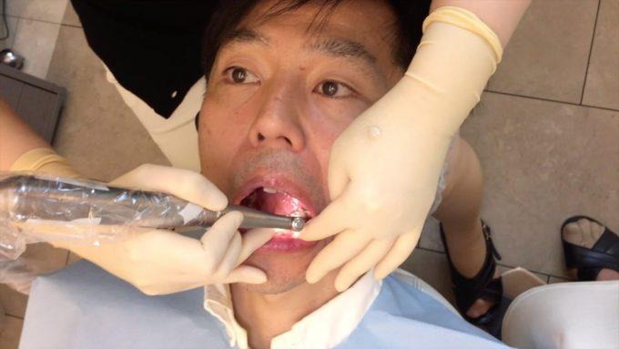 歯列矯正ワイヤー交換の手順②【装置と歯のクリーニング】