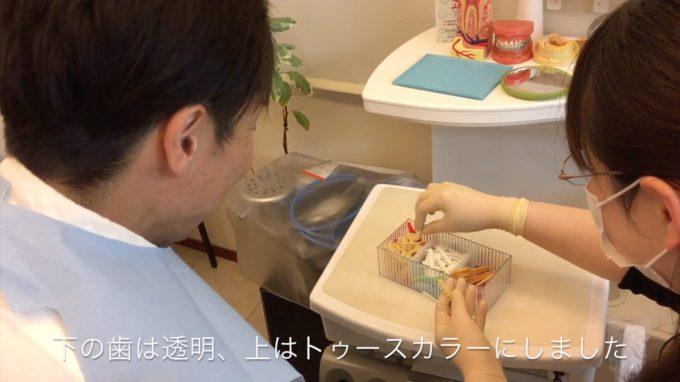 歯列矯正ワイヤー交換の手順④【カラーゴムの色選び】