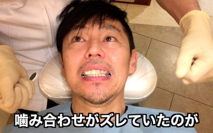 歯列矯正1年後の顔や口の歪み|2019年2月25日
