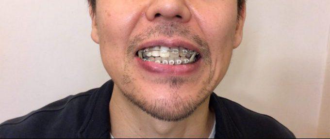 歯列矯正9ヶ月後の顔や口の歪み|2018年12月19日