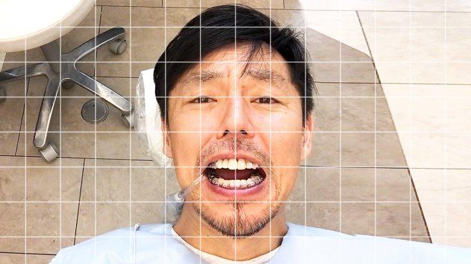 口がまっすぐ開かない人へ。歯列矯正で改善する様子をわかりやすく解説