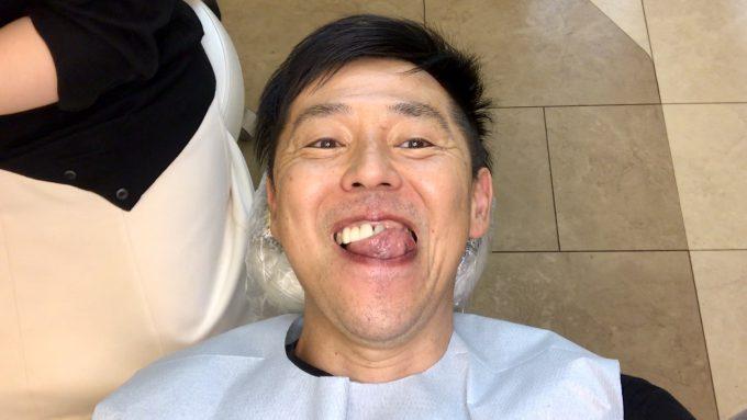 歯を舌で触る|ブラケットオフ直後の感想「違和感と開放感がスゴイ」歯列矯正ブログ