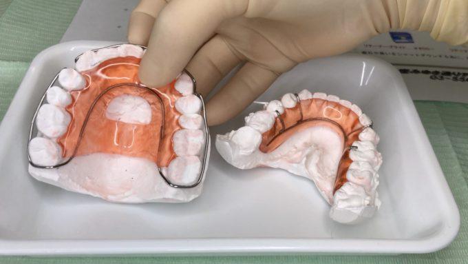 上の歯と下の歯のリテーナー|ブラケットオフの当日の流れ「所要時間わずか10分」詳細レポート