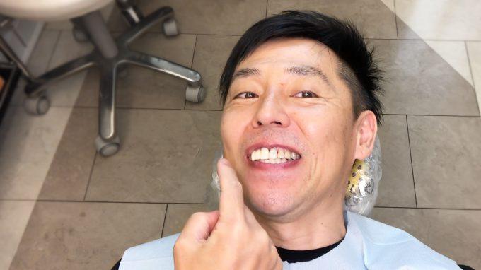 大人の歯列矯正は期間が長い?2年で終了した秘訣をリアルに解説