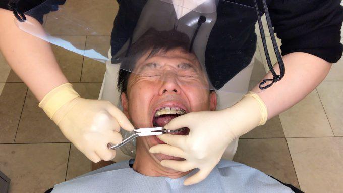 ブラケットオフは痛い?歯列矯正装置を外す時は〇〇の痛みに要注意